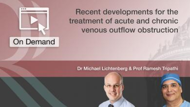 Recent Developments for the Treatment of Acute and Chronic VOO