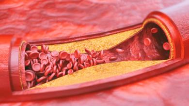 Atherosclerosis and Hyperlipidemia