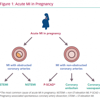 Acute MI in Pregnancy