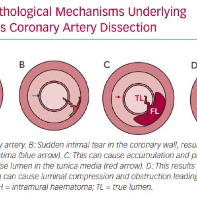 Pathological Mechanisms Underlying Spontaneous Coronary Artery Dissection